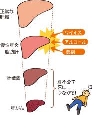 薬物性肝障害 - jstage.jst.go.jp