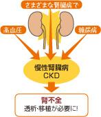 の 病気 腎臓 腎臓と血圧の関係|腎臓機能低下と高血圧|知ろう。ふせごう。慢性腎臓病(CKD)